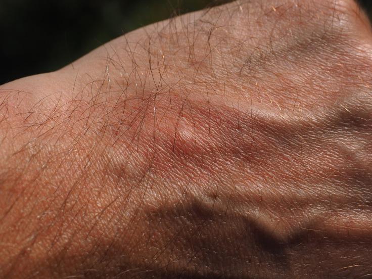mosquito-bite-2117421_1280